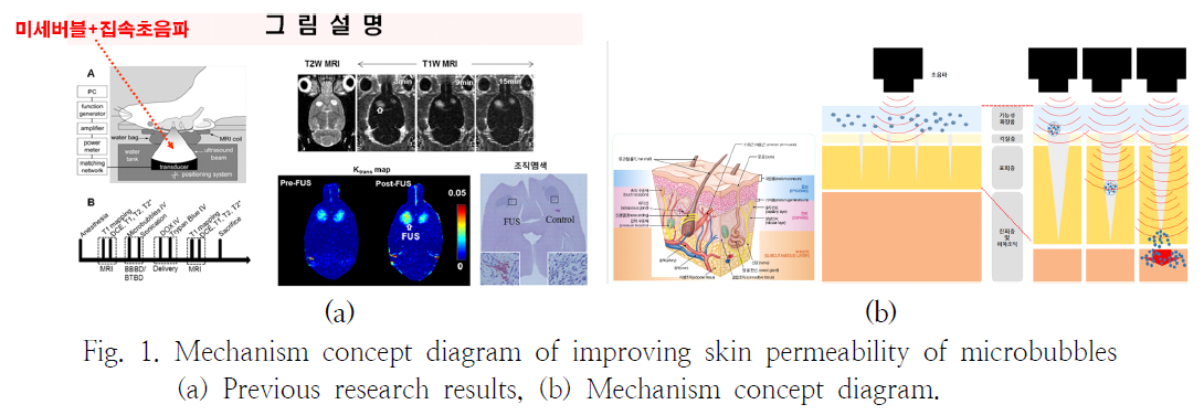 Fig. 1. Mechanism concept diagram of improving skin permeability of microbubbles (a) Previous research results, (b) Mechanism concept diagram.